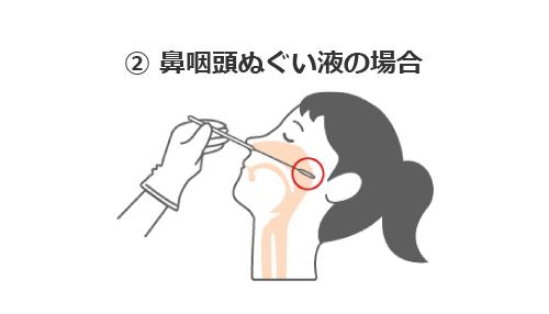 鼻咽頭からの検体採取
