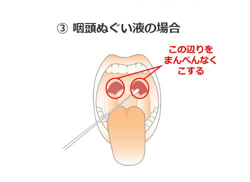 咽頭からの検体採取